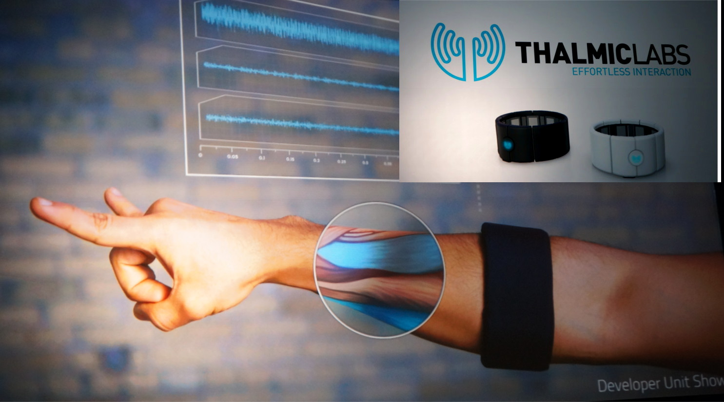 SWW2015-Thalmiclabs-hand